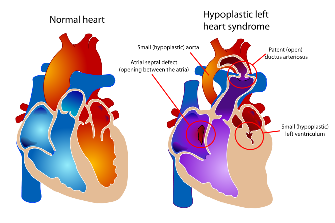 HLHS and Normal Heart