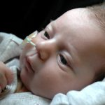 1-birmingham-childrens-hospital-heart-valve-bank